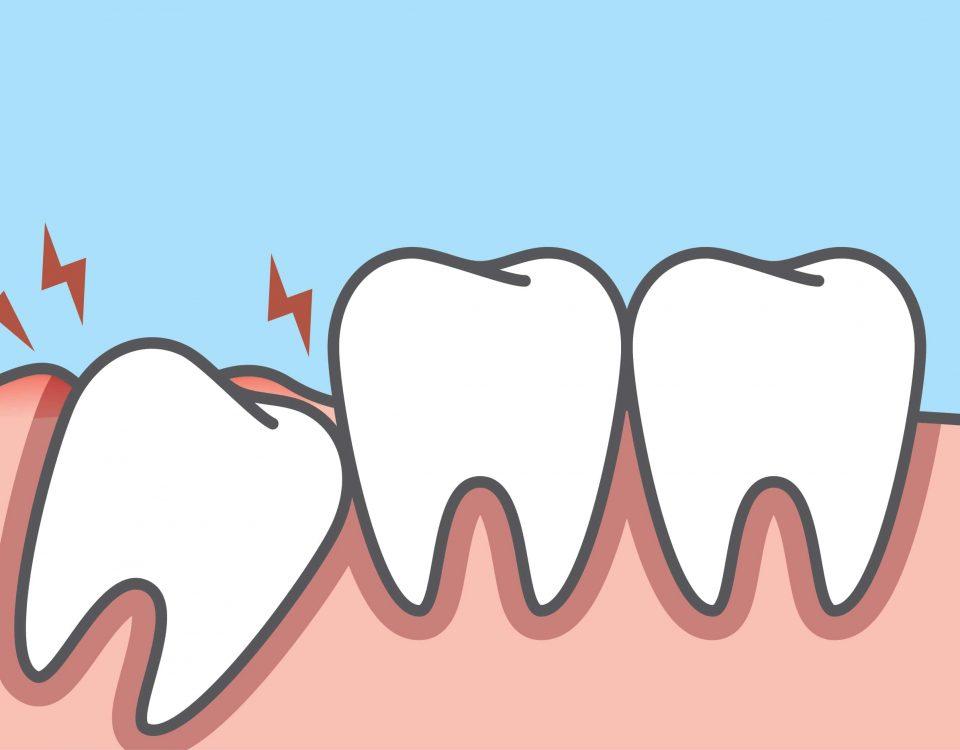 I denti del giudizio vanno sempre estratti? Scopri sintomi, caratteristiche e anomalie in questa guida.