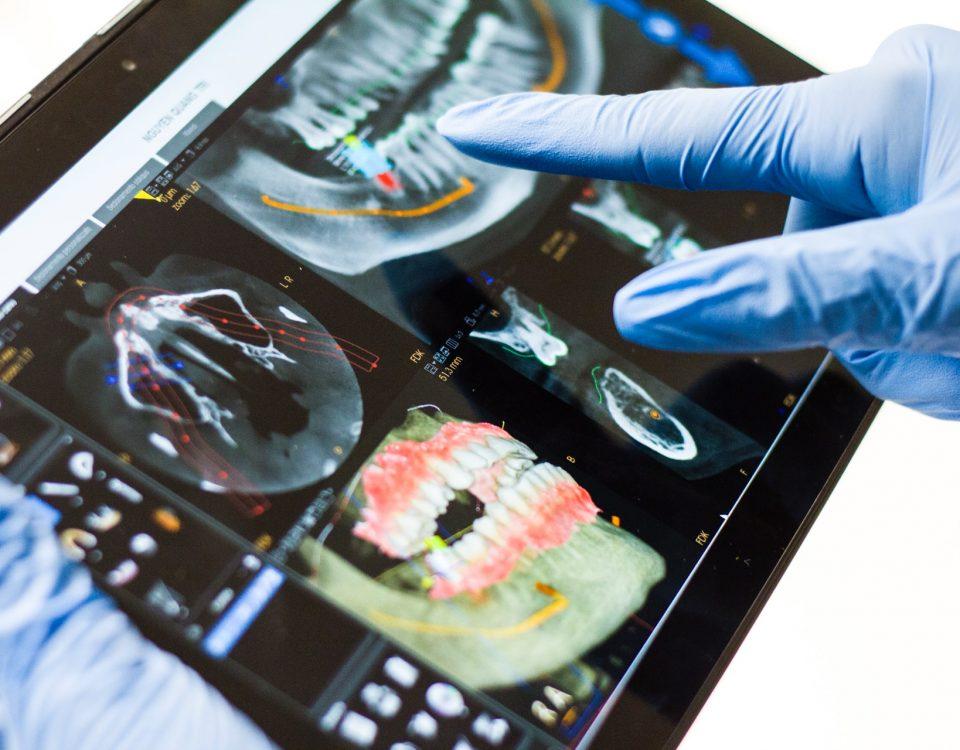 Che cos'è lo scanner intraorale