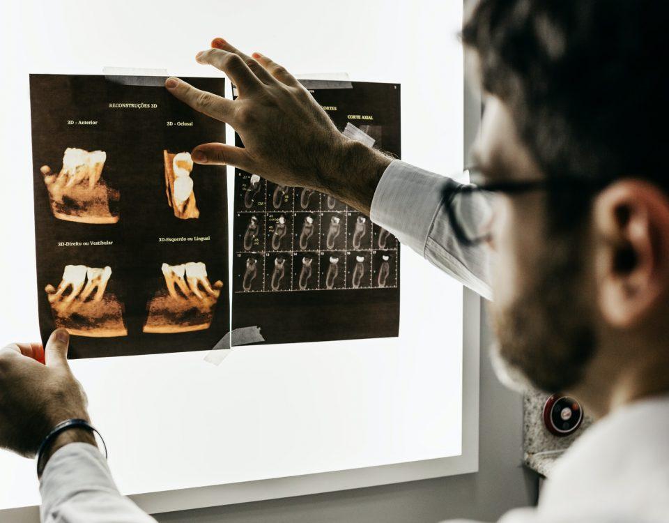 Che cos'è la chirurgia guidata dinamica?