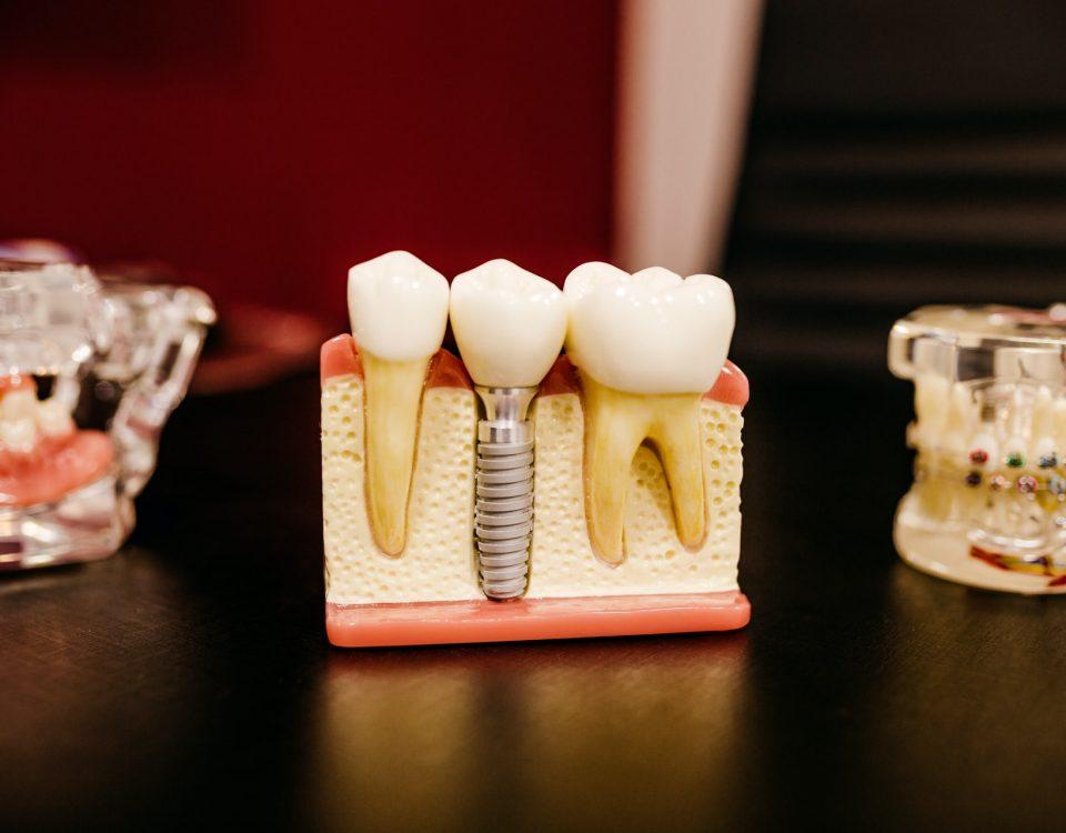 Che cos'è l'implantologia dentale?